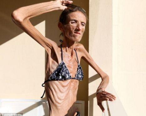 Valeria a ajuns sa arate ca un schelet, din cauza curelor de slabire
