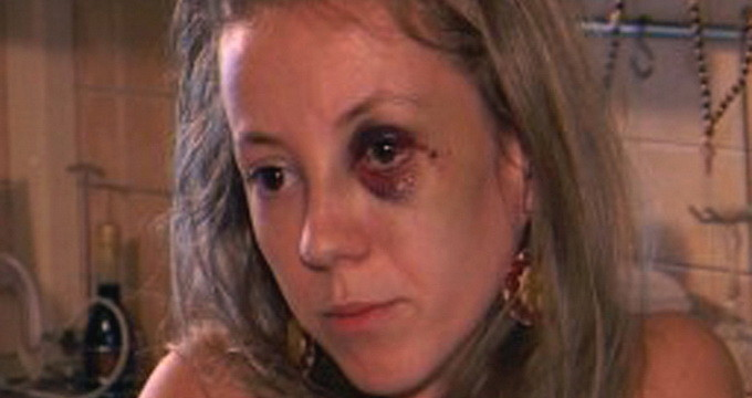 Larisa l-a acuzat pe fostul ei sot de violenta, iar imaginile cu ea vanata au facut inconjurul internetului la acea vreme