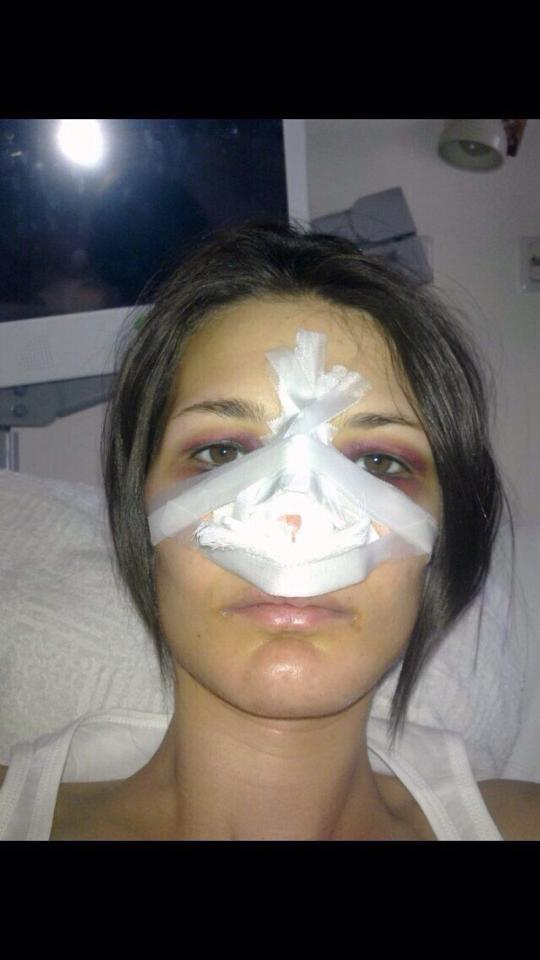 Dovada ca Roxana si-a operat nasul