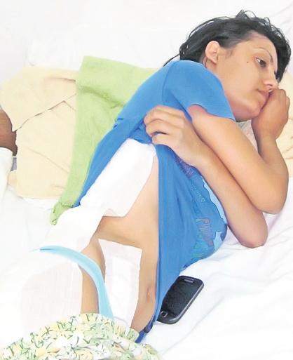 Asa arata Eliza Oprea la scurt timp dupa operatia de apendicita