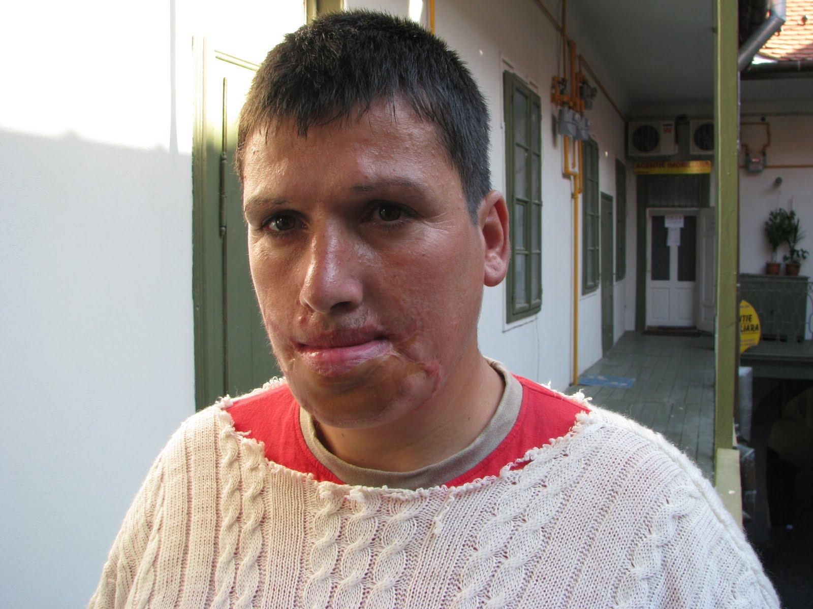 Transexualul s-a desfigurat dupa ce si-a turnat soda caustica pe fata