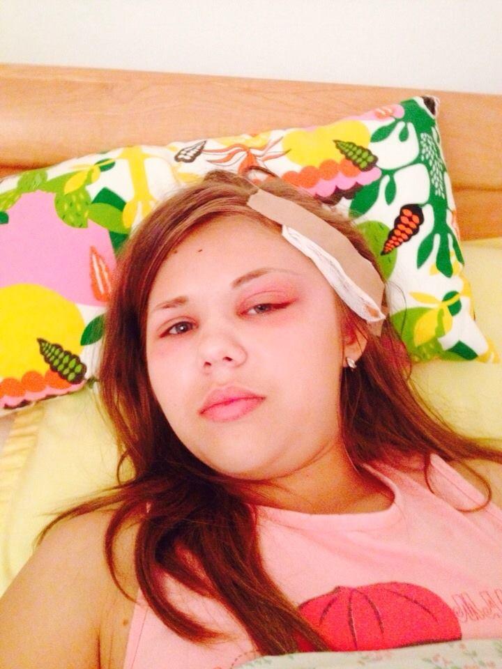 Andreea, in varsta de 15 ani, a fost deja operata de trei ori