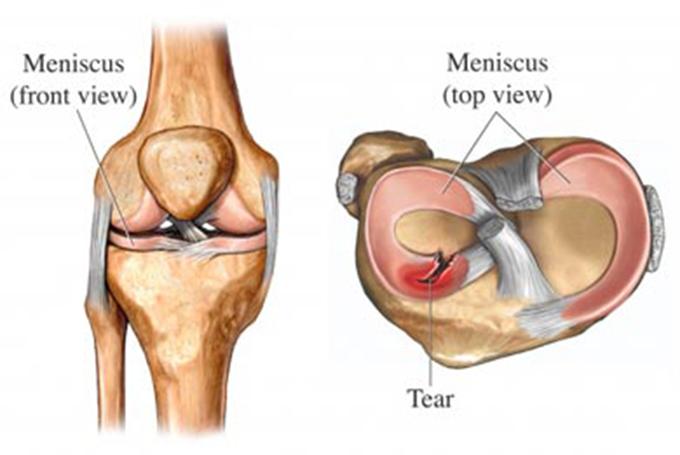 tratarea leziunilor meniscului genunchiului