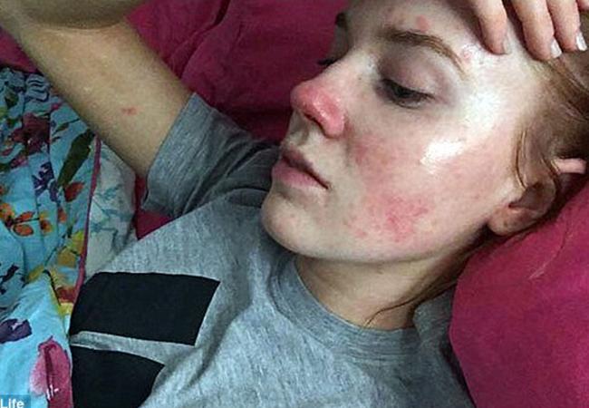 Emma Lawson are pete pe faţă şi pe corp din cauza unei boli cumplite.
