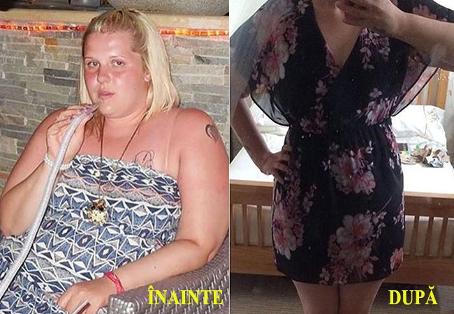 În prima imagine vedeţi cum arăta tânăra în 2014, iar în cea de-a doua vedeti cum arată acum.