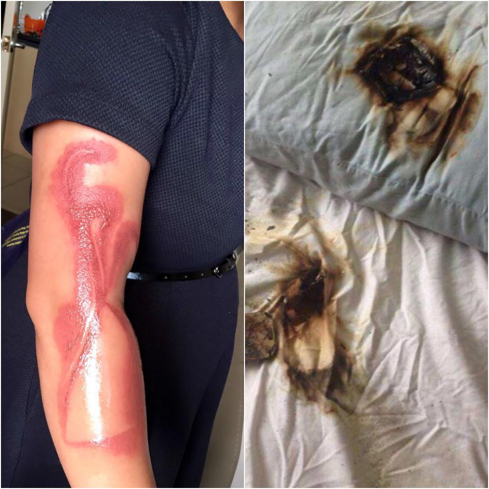 Tânăra a suferit o arsură gravă la nivelul braţului din cauza unui iPhone 7
