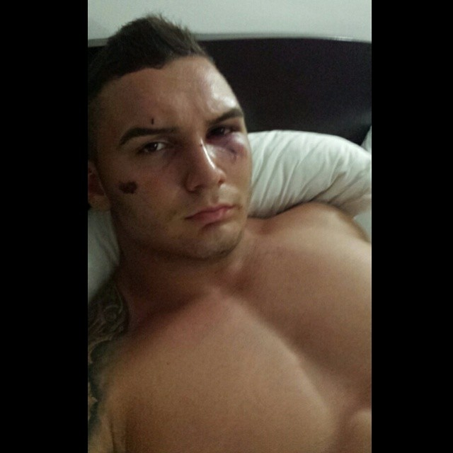 Sabi a a fost injunghiat in brat de catre un agresor