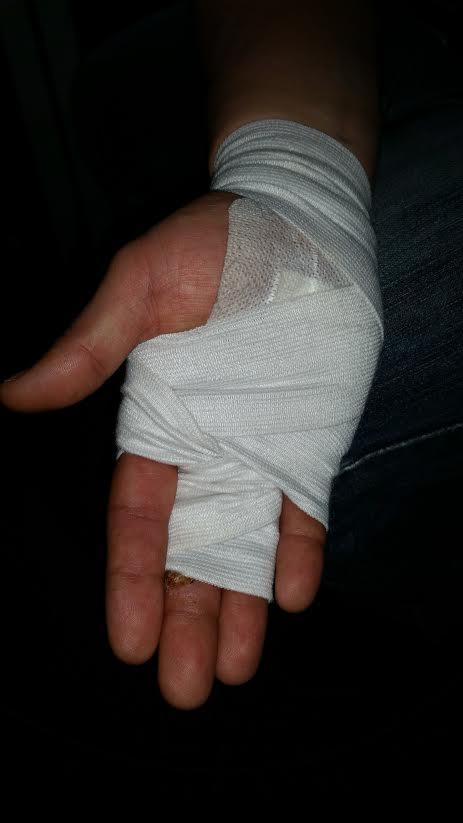 Tanarula plecta de la spital bandajat