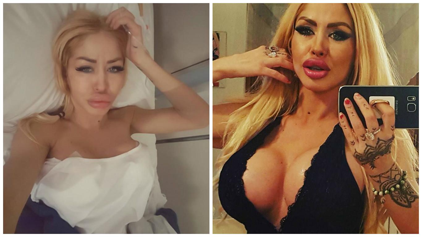 În prima imagine o puteţi vedea pe Eva Kent imediat după operaţie, iar în cea de-a doua, vedeţi cum arată acum.