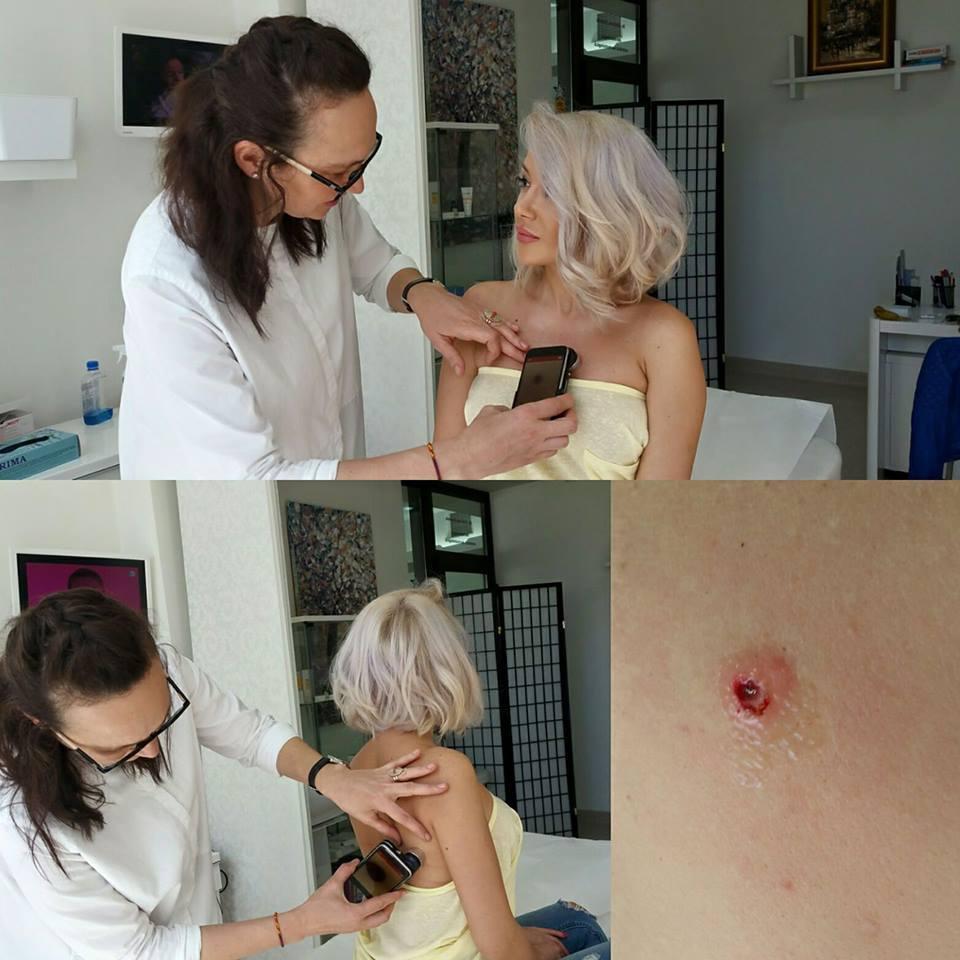 Medicul i-a extirpat Ralucăi o aluniţă