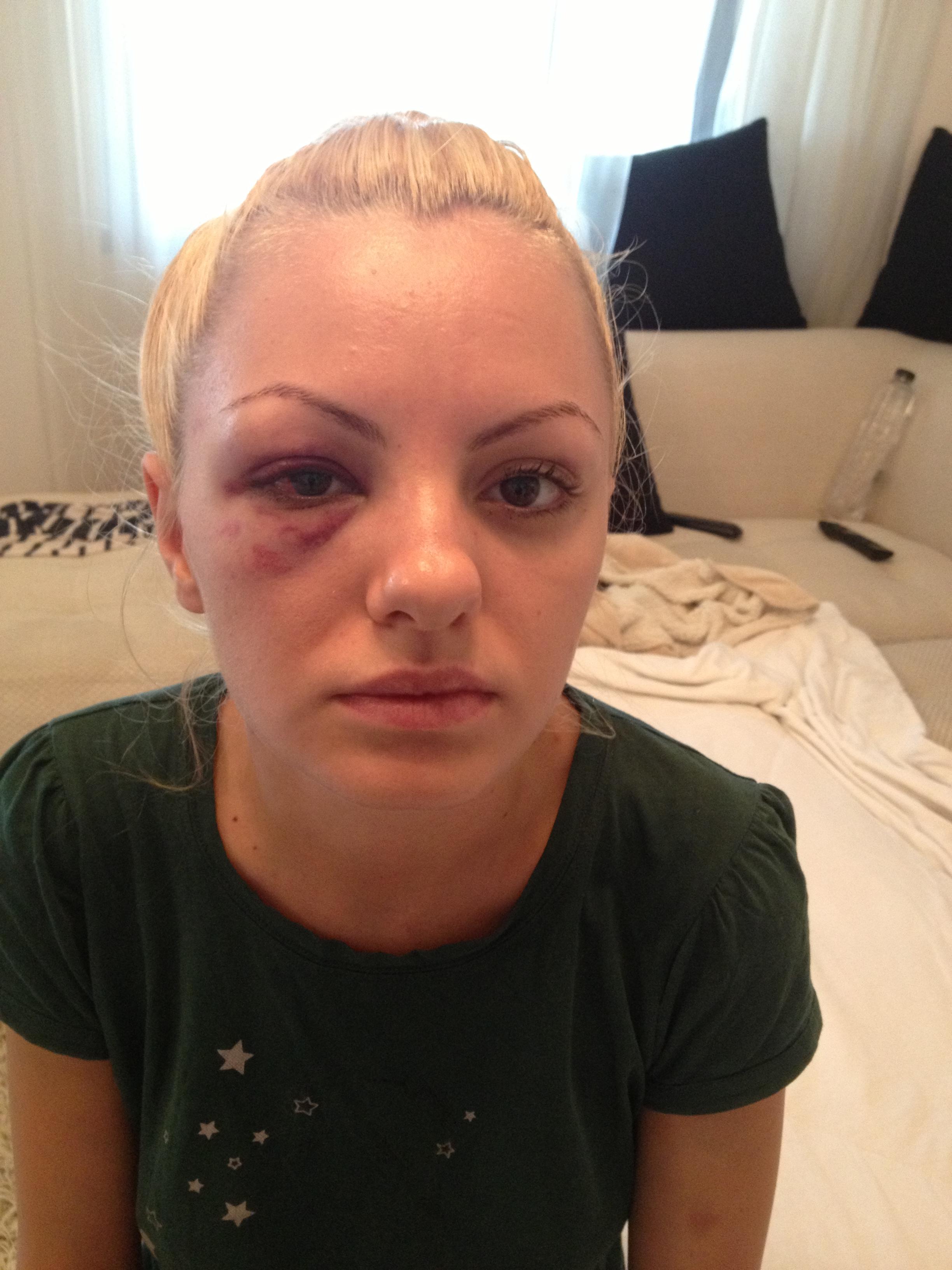 Alexandra Stan a fost snopita in bataie de catre managerul ei