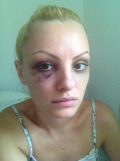 Alexandra Stan a trimis pe adresa redactiei CANCAN.ro imagini realizate in aceasta dimineata, cu fata tumefiata