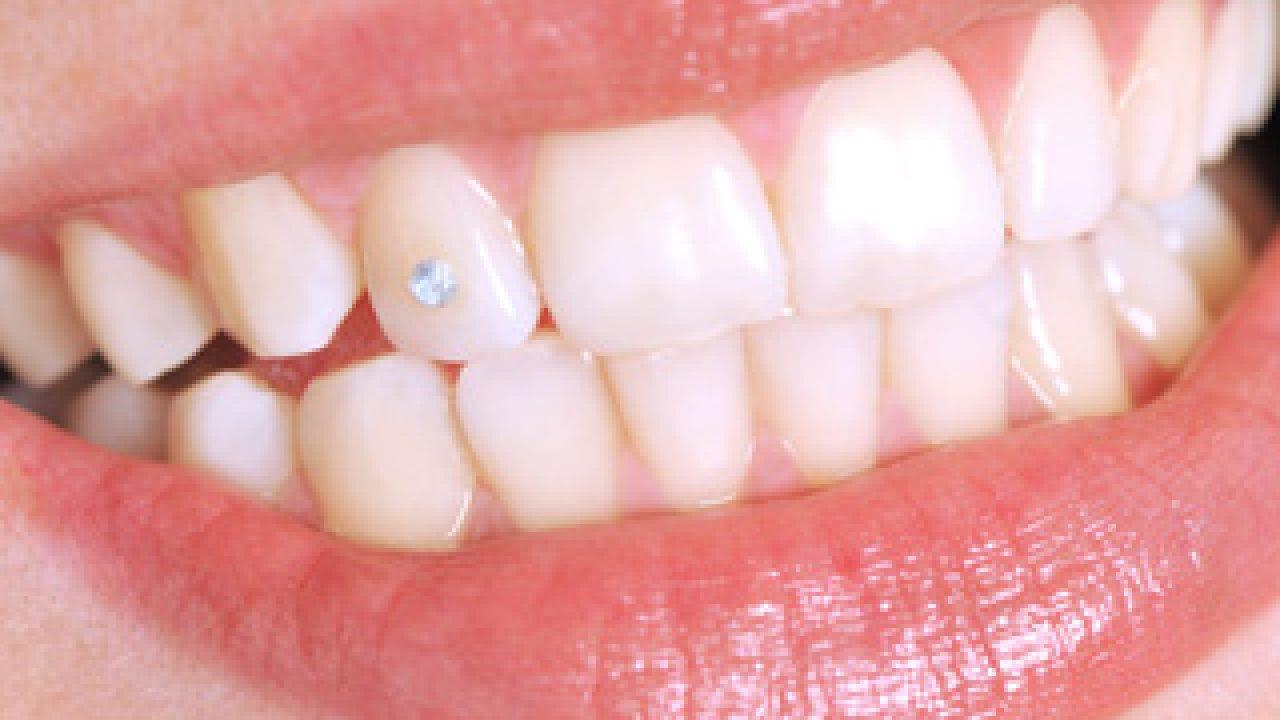 Negi genitale ale cavității bucale. negi in zona genitala la barbati - Negi genitale ale scrotului