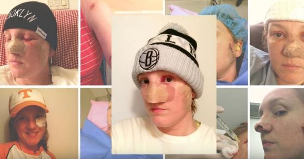 cancer de piele obraz
