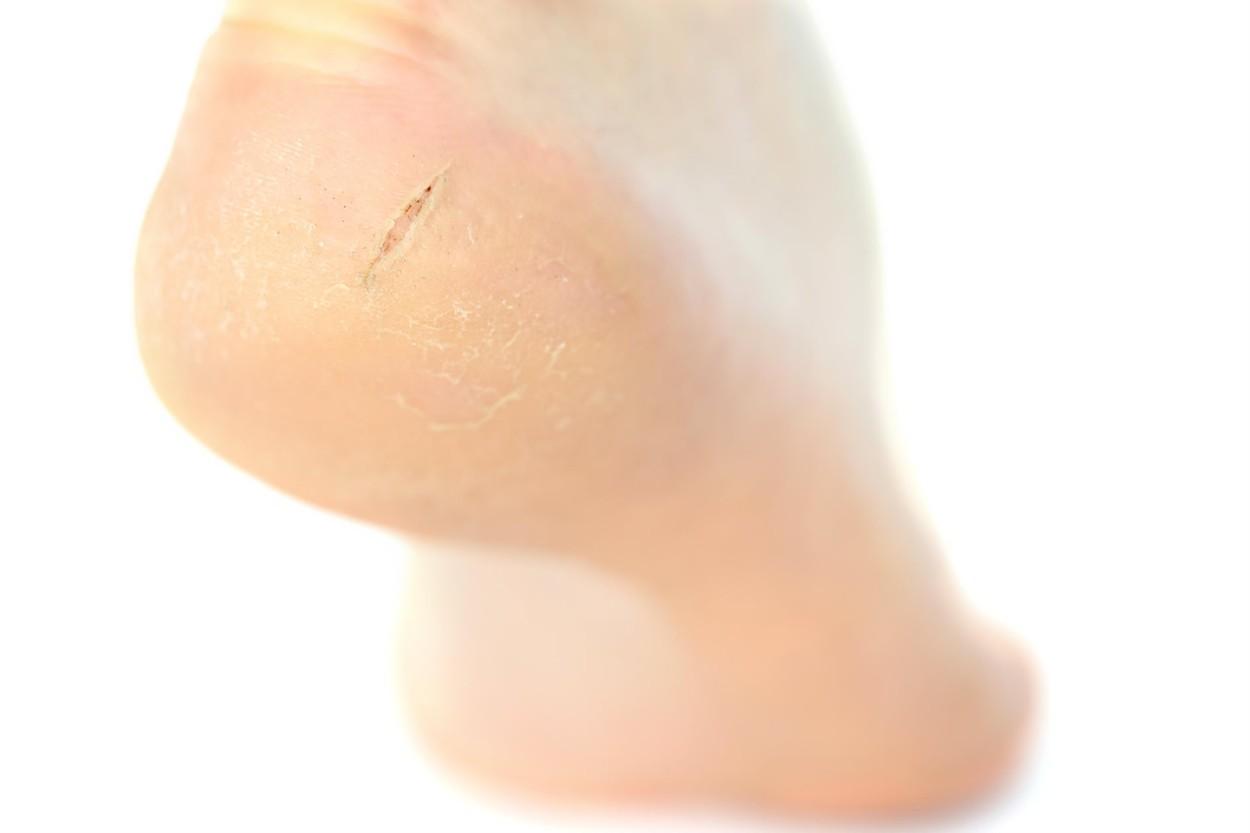 Varice pe picioare, este posibil să se încălzească
