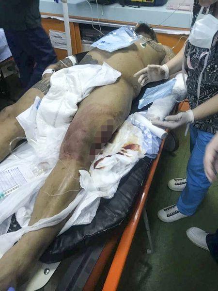 Bebino a ajuns pe masa de operație, cu răni grave