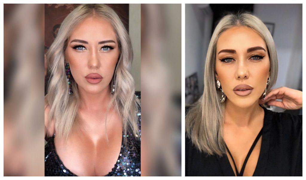 Ana-Maria Crudu, cu noile implanturi (foto stânga); Ana-Maria Crudu, înainte de operația estetică (foto dreapta) © Facebook