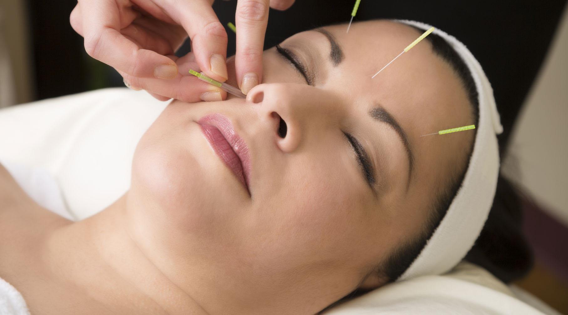 acupunctura vă va ajuta de la varicoză)
