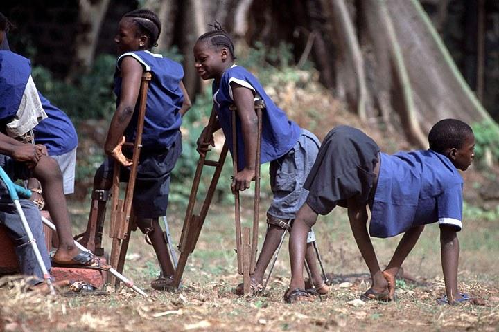 Tineri afectați de Poliomielită