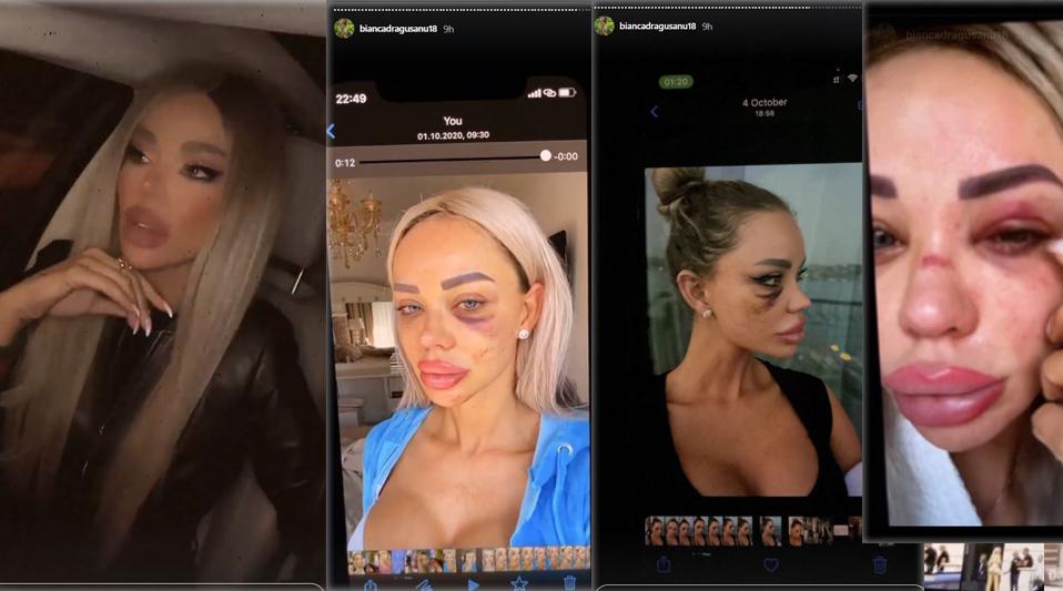 Bianca Drăgușanu a publicat mai multe poze după ce a fost snopită de Alex Bodi © Instagram Stories